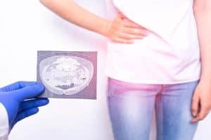 Infertilidade: O Fator Peritoneal