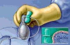 PESA - Aspiração percutânea de espermatozóides do epidídimo