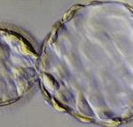embriões-implantam